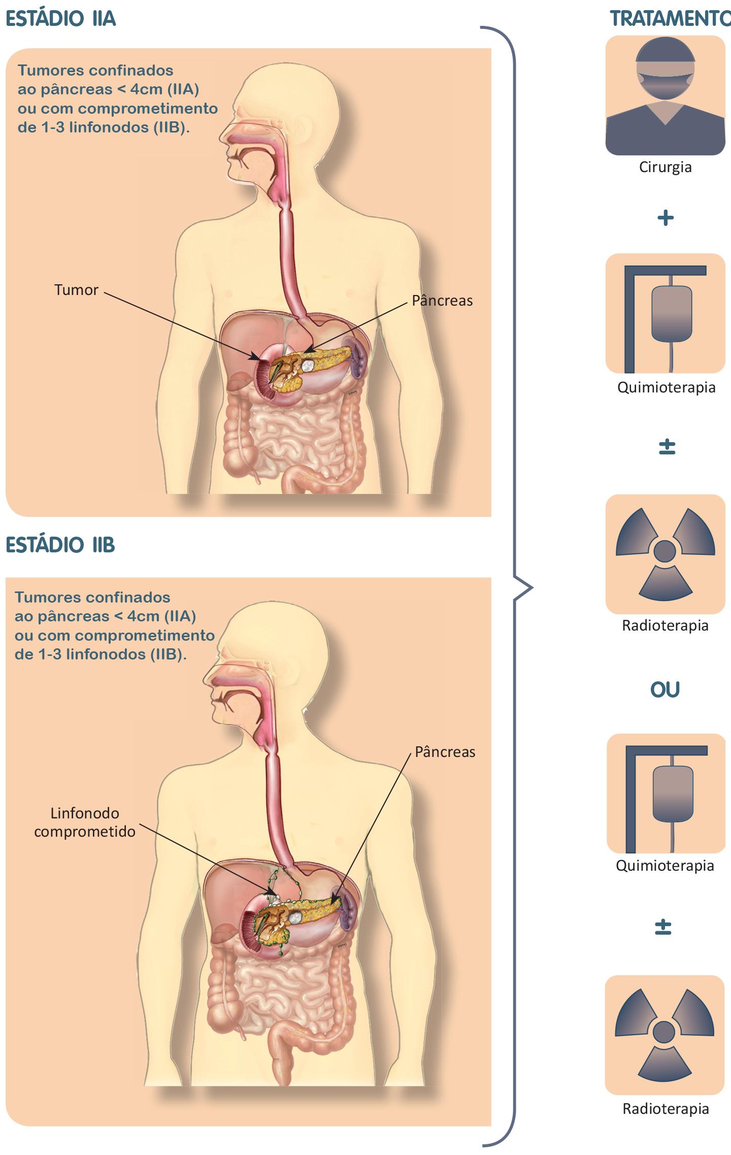 Tratamento do câncer de pâncreas estádio 2.