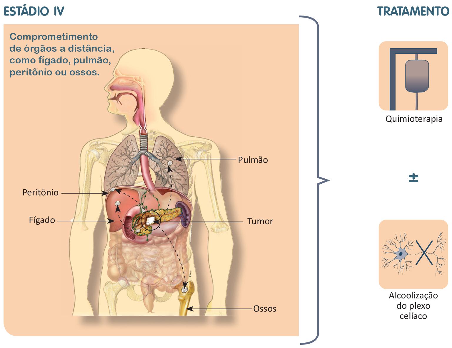 Tratamento do câncer de pâncreas estádio 4.