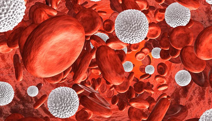 leucemia mieloide crônica
