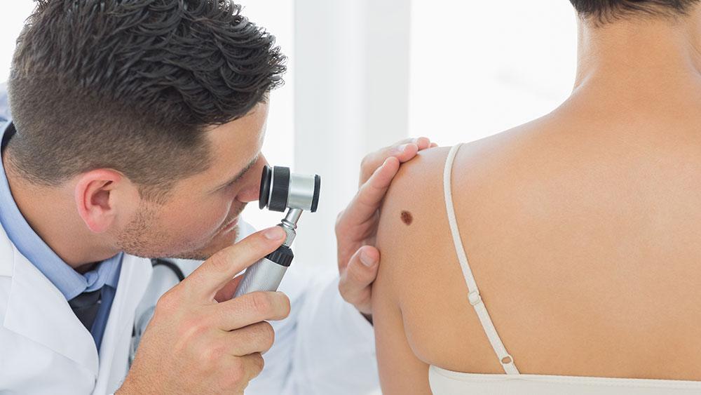 melanoma pintas analisadas por dermatologista